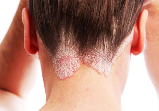 В чем разница между атопическим дерматитом и аллергией