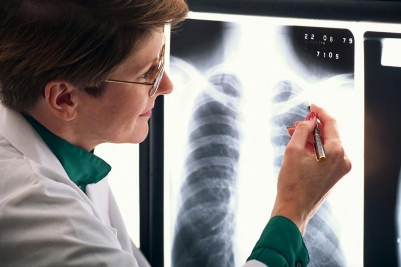 Омский доктор незаметил упациента туберкулеза, атот заразил всю семью